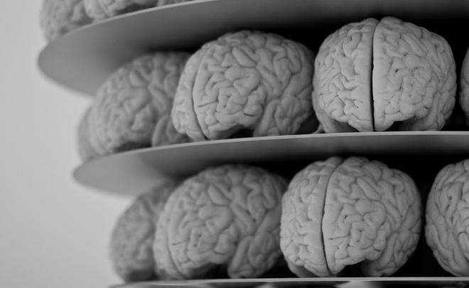 Великобритания передала в Бельгию 3 тысячи человеческих мозгов